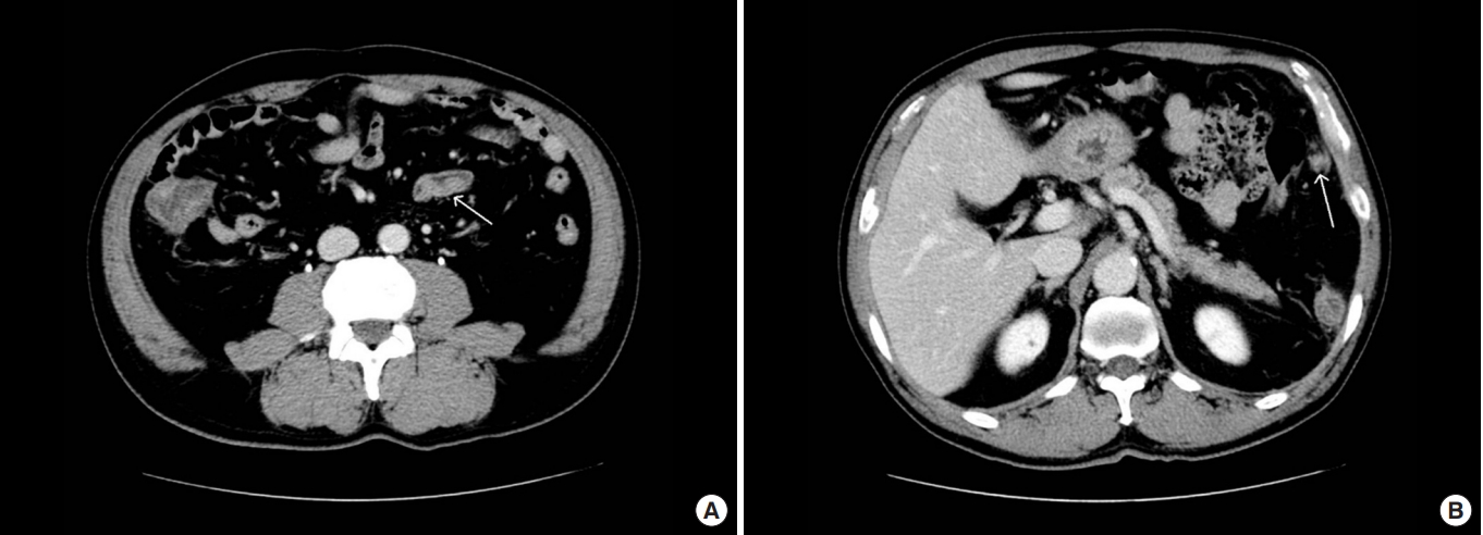 Toxocara Canis Mimicking A Metastatic Omental Mass From Sigmoid Colon Cancer A Case Report